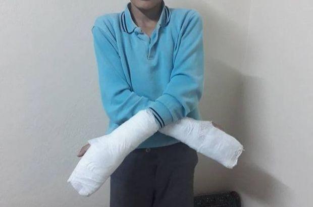 Böyle ceza yok! Okuldan kaçtı diye müdür ellerini kırdı!