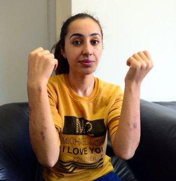 Adana´da bir güzellik merkezinde vücuduna lazer epilasyonu yaptıran üniversite öğrencisi Sibel Doğru