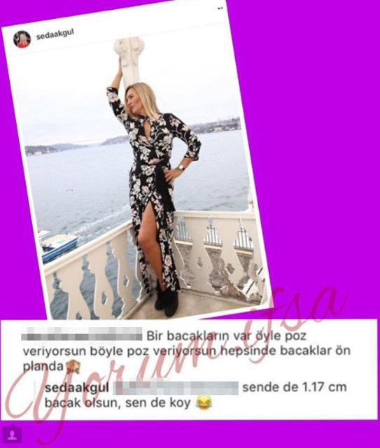 Seda Akgül: Sende de 117 cm bacak olsa... - Magazin haberleri