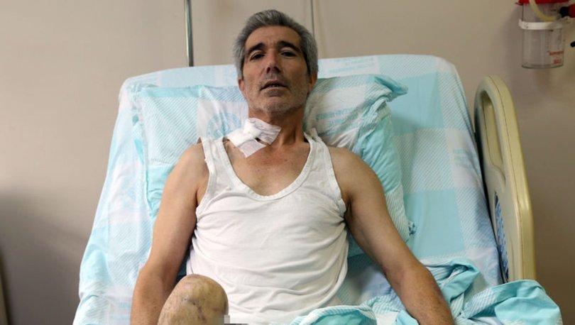 Doku nakli ile bacağı kesilmekten kurtuldu