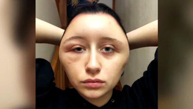 Saçını boyayan genç kızın kafası büyüdü!