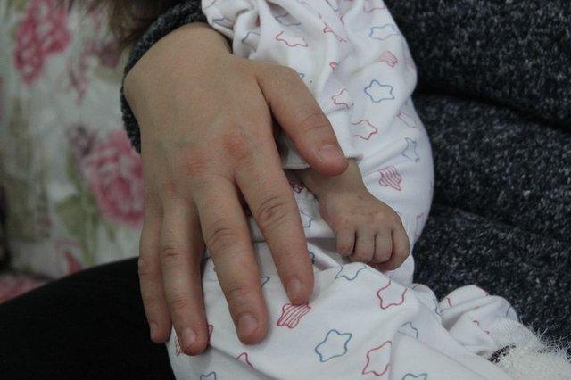 2 yaşındaki Hallerman-Streiff Sendromlu minik Hira yardım bekliyor