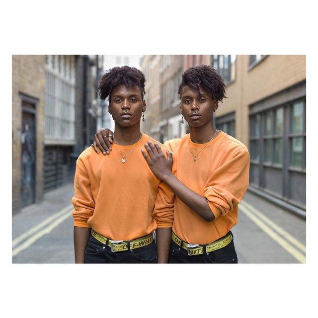 Ünlü fotoğrafçı ikizlerin arasındaki farklılıkları gösterdi