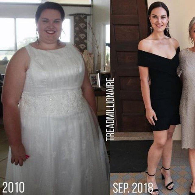 Aşırı kilolarından kurtulmak için ameliyat oldu, 80 kilo verdi!