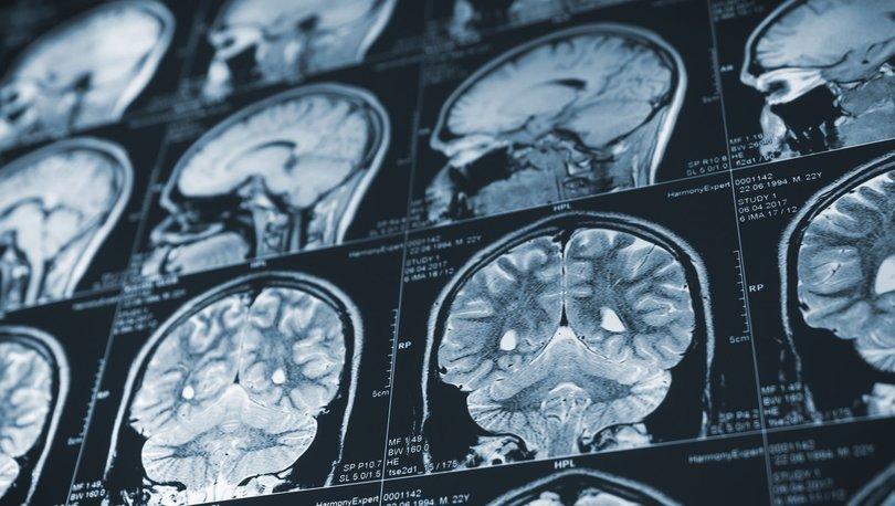 CCR5 geninin yoksunluğu inme sonrası iyileşmeyi hızlandırıyor