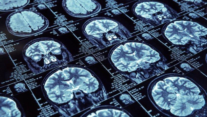 Türk Nöroloji Derneği