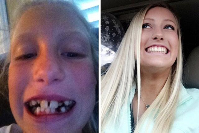 Diş teli taktırdıktan sonra adeta evrim geçirdiler!