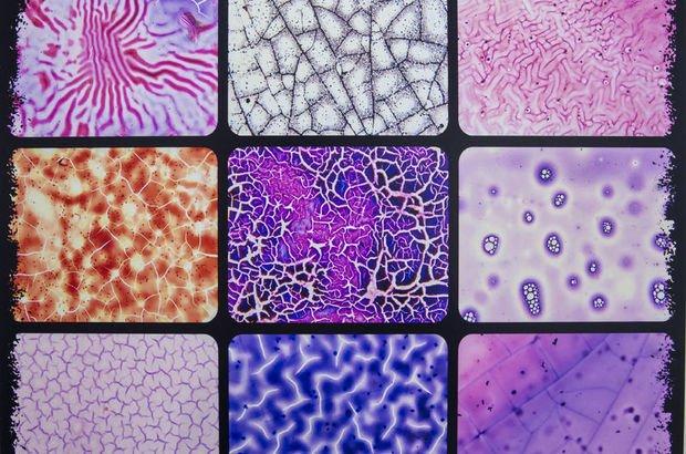 Mikroskoptaki doku