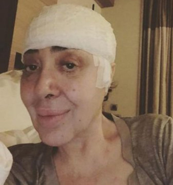 Nur Yerlitaş ikinci kez ameliyat oldu - Magazin haberleri