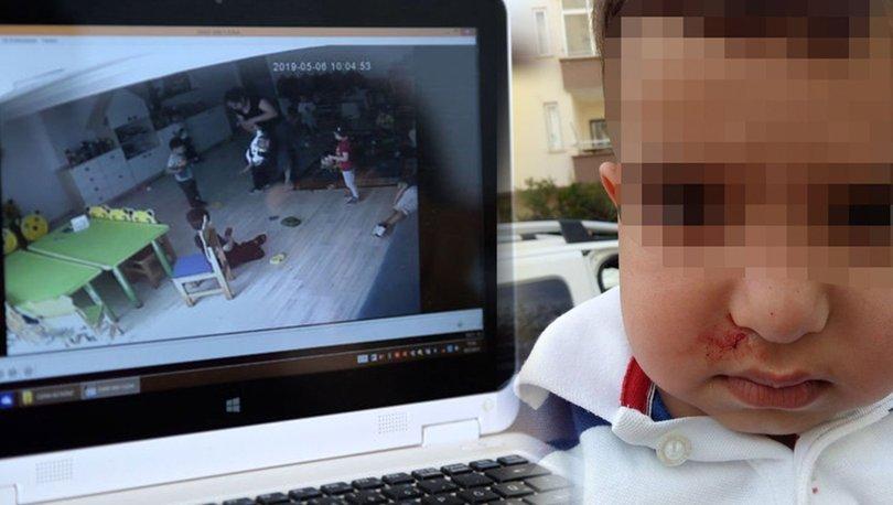 3 yaşındaki çocuğa kreşte şiddet iddiası ile ilgili görsel sonucu