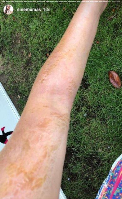 Sinem Umaş'ın kolları yandı - Magazin haberleri
