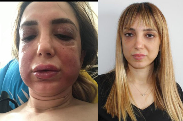 Estetik mağduru Feryal Mansuroğlu'nun yüzü tanınmaz hale geldi!