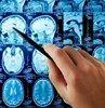 OMÜ Saglik Uygulama ve Arastirma Merkezinde bulunan Nöromodülasyon Merkezi