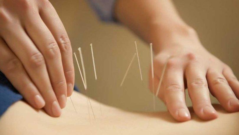 Akupunktur nedir? Nasıl yapılır? Akupunktur hangi hastalıklara iyi gelir?