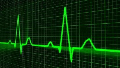 Taşikardi nedir? Nedenleri ve belirtileri nelerdir? Taşikardi tedavi yöntemleri...