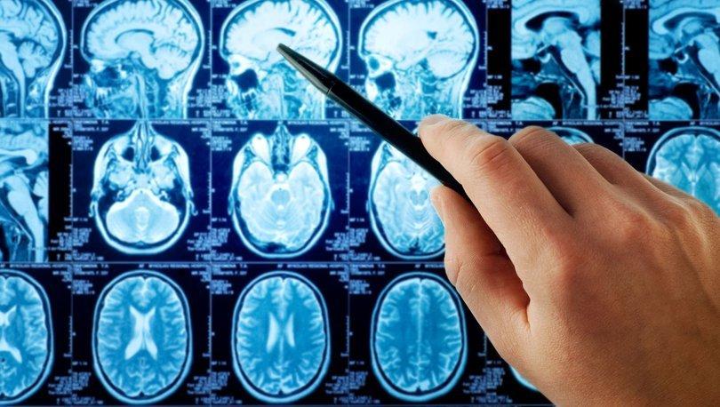 Alzheimer'da erken teşhis için geliştirilen kan testinde sona yaklaşılıyor