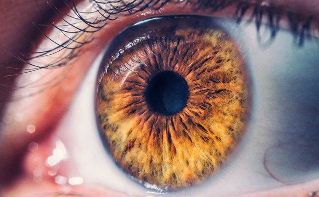 İri gözler tiroid hastalığı habercisi olabilir!