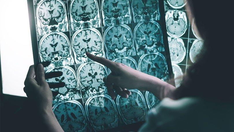 SON DAKİKA! Alzheimer kan testi ile 20 yıl önceden teşhis edilebilecek! - SAĞLIK HABERİ
