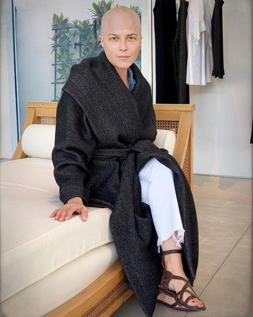 Selma Blair zor günler geçiriyor: Saçımın dökülmesi umurumda değil - Magazin haberleri