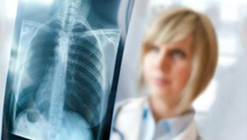 Akciğer kanseri belirtileri nelerdir? Akciğer kanseri nasıl tedavi edilir?