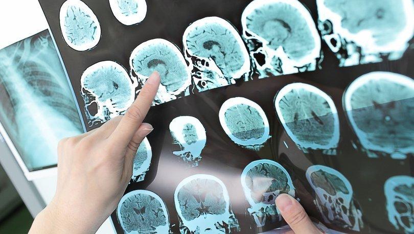 Hidrosefali hastalığı Alzheimer ile karıştırılıyor!
