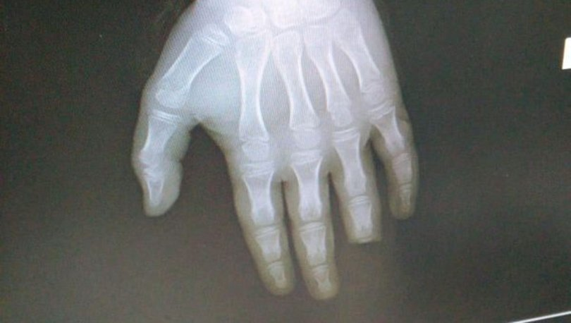 Son dakika KORKUNÇ OLAY! Balon balığı, 8 yaşındaki çocuğun parmağının yarısını kopardı! - Haberler