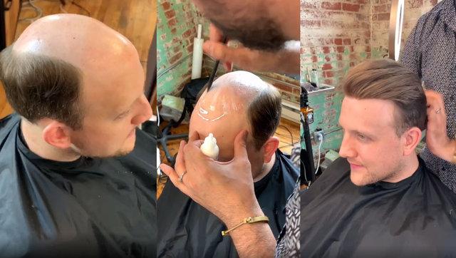 Protez saç ile değişen erkekler ağızları açıkta bırakıyor