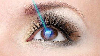 Lazerle göz ameliyatı nasıl yapılır?