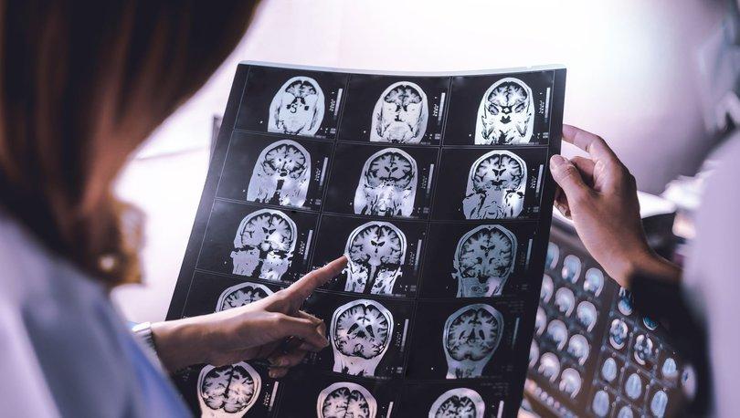 Tedaviye dirençli baş ağrıları