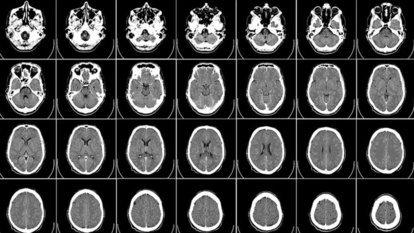 Obez çocukların beyinlerinde farklılık gözlendi