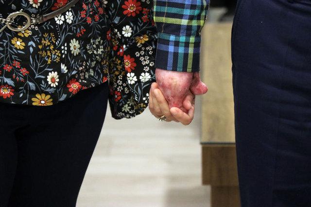Kelebek hastası, eşinin elini ilk kez tuttu