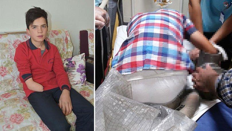 Nurettin'in kol protezi için 160 bin TL'lik yardım kampanyası başlatıldı