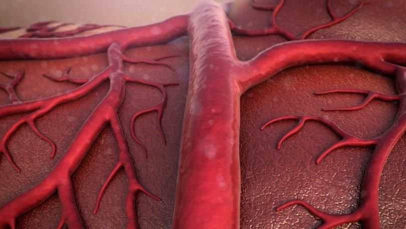 Damar (Aort) genişlemesi nedir, neden olur, nedenleri ve belirtileri nelerdir? Tedavisi nasıl yapılır?