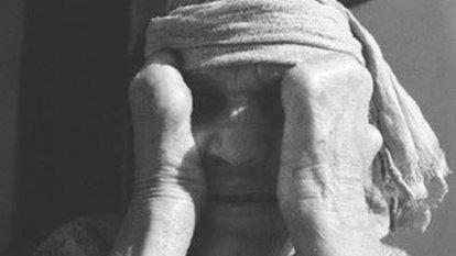 Cüzzam hastalığı nedir, belirtileri nelerdir? Cüzzam hastalığı nasıl tedavi edilir?