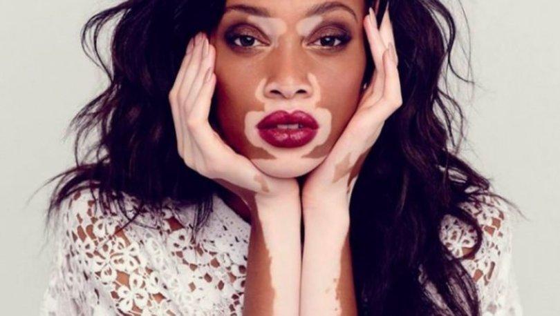 Vitiligo nedir
