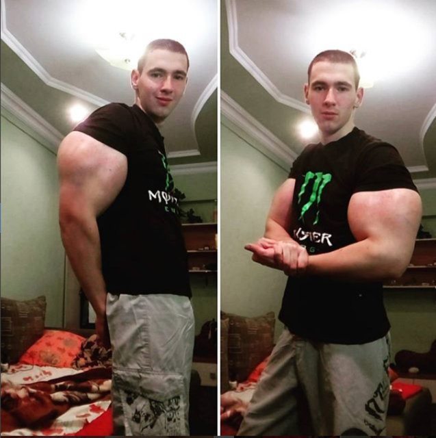 Kollarıyla ünlenen Kirill Tereshin ameliyat oldu! İşte son hali... - Haberler