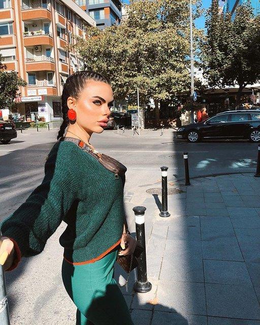 Fenomen tıp öğrencisi Berika Demir'in estetiksiz hali ortaya çıktı