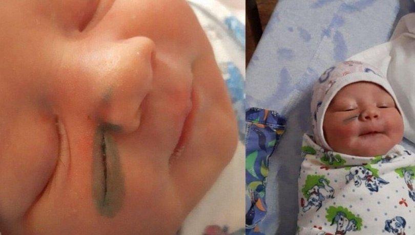 Rusya'da doktorlar doğum sırasında bebeğin yüzünü kesti