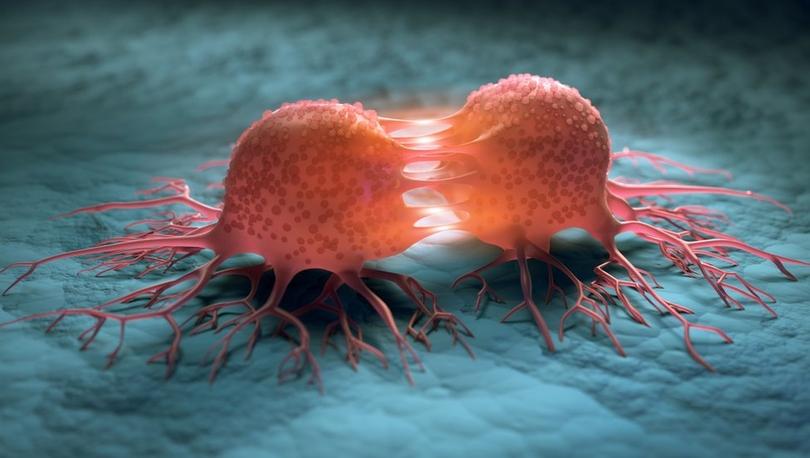 Araştırma: Kanser oluşmadan on yıllar önce tespit edilebilir
