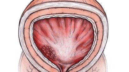 Prostat hastalığı nedir?