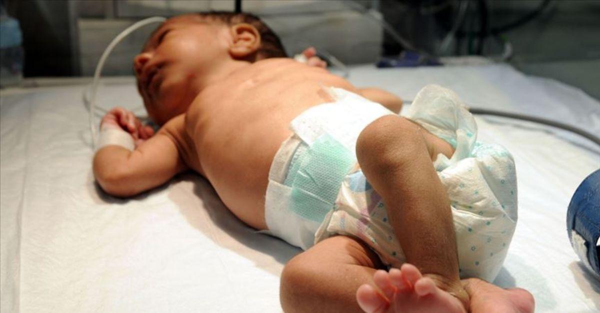 Her yıl yaklaşık 15 bin bebek doğumsal kalp hastalığıyla dünyaya geliyor