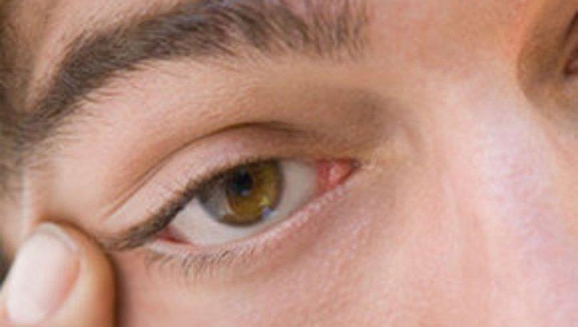 Göz ağrısı neden olur? Evde tedavi yöntemleri nelerdir? Göz ağrısı hakkında tüm detaylar...