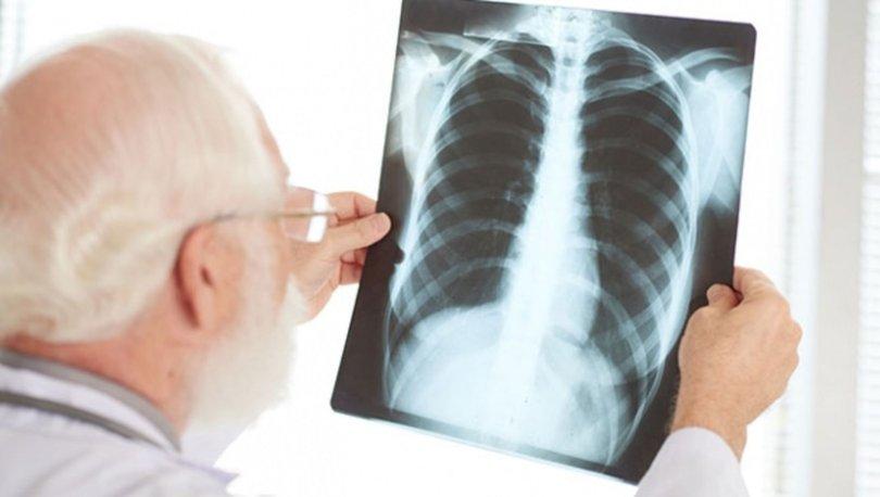 Zatürre (Pnömoni) nedir? Zatürre neden olur? Pnömoni belirtileri ve tedavisi nasıldır?