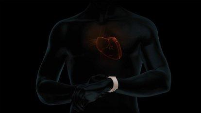 Apple EKG