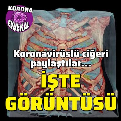 Koronavirüslü akciğerin görüntüsü paylaşıldı