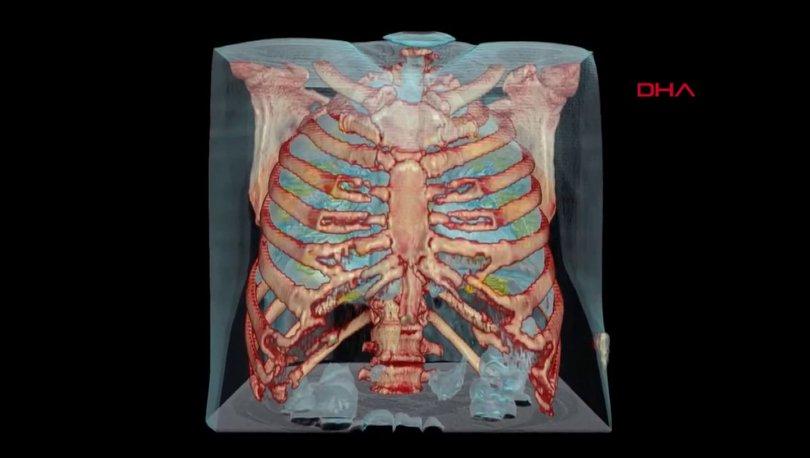 Korona son dakika! Koronavirüslü akciğerin 3D görüntüsü paylaşıldı! - Haberler