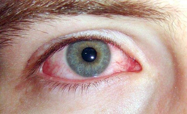 Konjonktivit (pembe göz) koronavirüsün yeni belirtisi olabilir! - Haberler