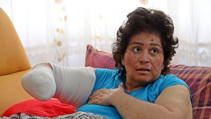 Hastalığı yüzünden sağ kolu kesilecek olan Sibel Oflas yardım istedi - Haberler