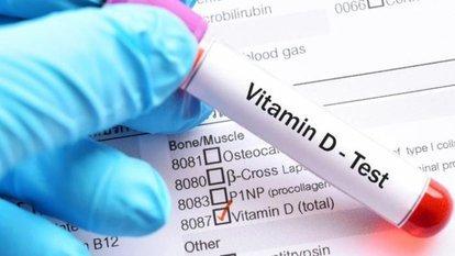25-Hidroksi D Vitamini testi