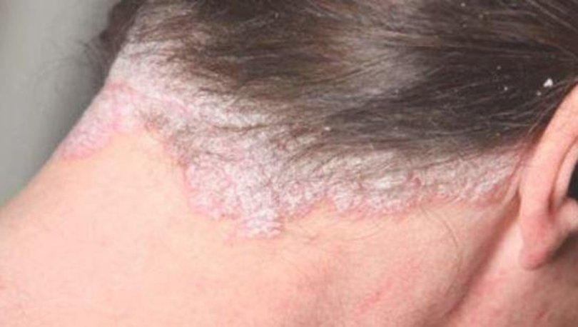 Seboreik dermatit nedir?